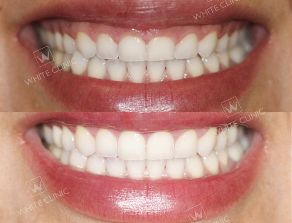 kết quả điều trị cười hở lợi