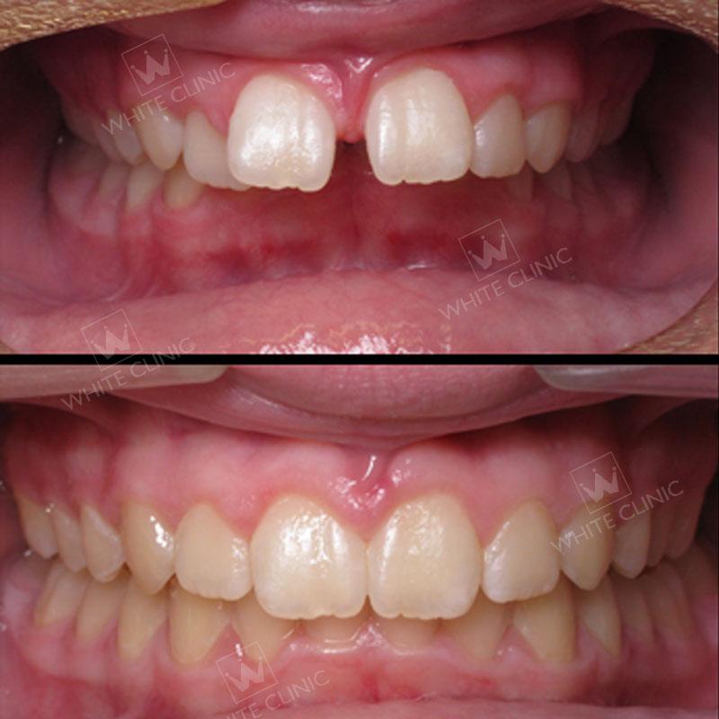 kết quả niềng răng mắc cài