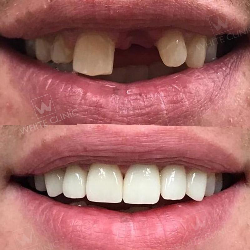 Kết quả trồng răng implant