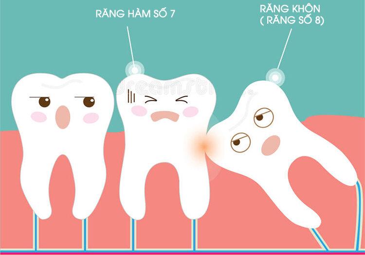 rang-khon